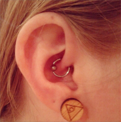 daith piercing through the ear's innermost cartilage fold, the crus of the helix